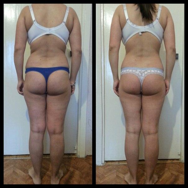 Аппаратное Похудение Результаты. Сравнительный обзор 18 способов аппаратной коррекции фигуры